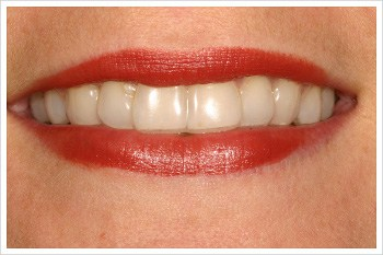 Straighter Teeth - Invisalign