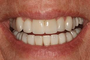 Patient 11 - Crooked teeth