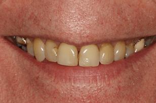 Patient 13 - Black amalgam filling