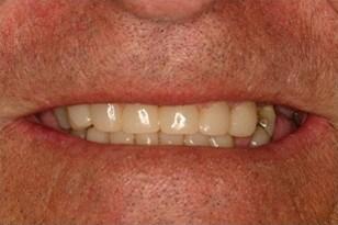 Patient 2 - Severely worn teeth