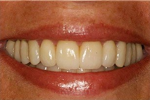 Patient 7 - Teeth discoloration