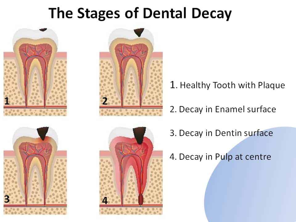 The Stages of Dental Decay